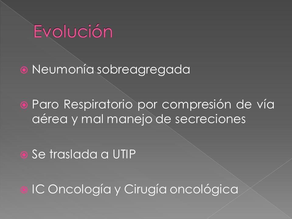 Evolución Neumonía sobreagregada