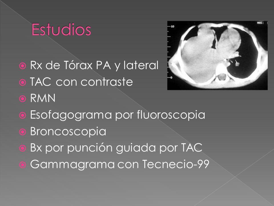 Estudios Rx de Tórax PA y lateral TAC con contraste RMN