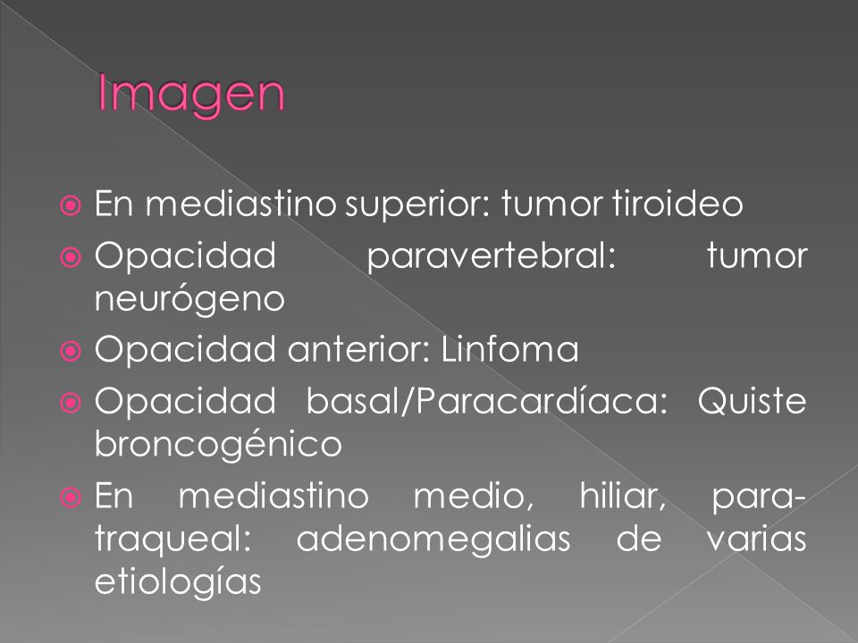 Imagen En mediastino superior: tumor tiroideo