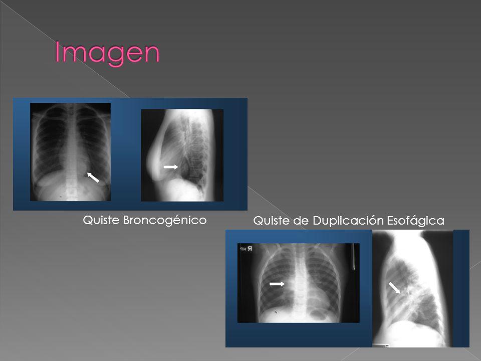 Imagen Quiste Broncogénico Quiste de Duplicación Esofágica