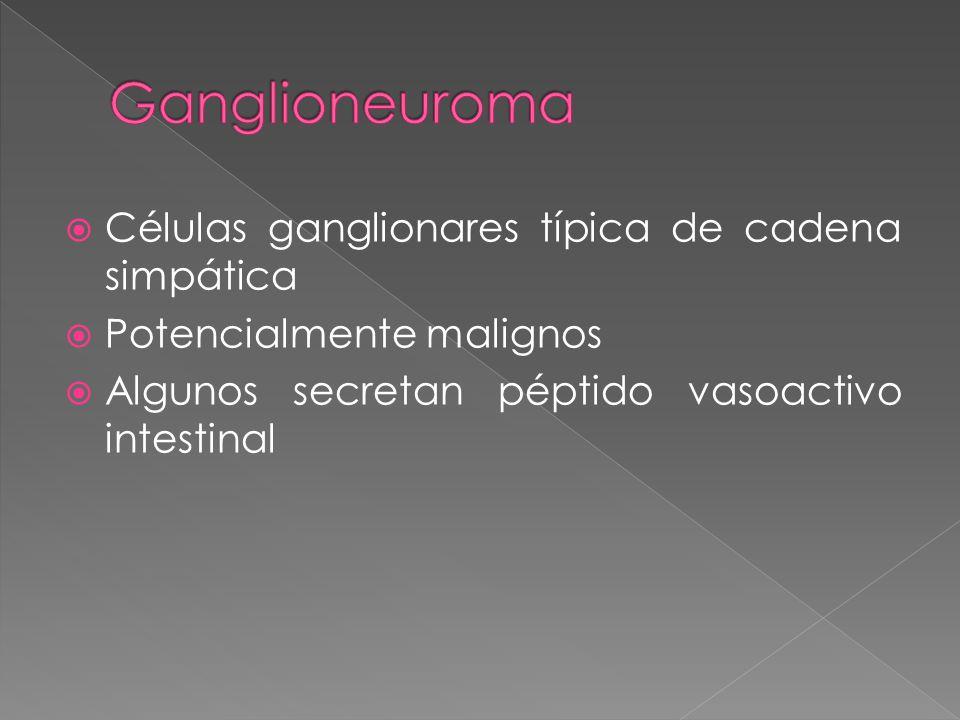 Ganglioneuroma Células ganglionares típica de cadena simpática