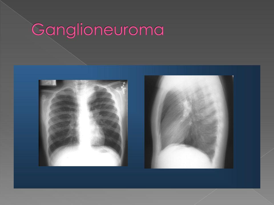 Ganglioneuroma