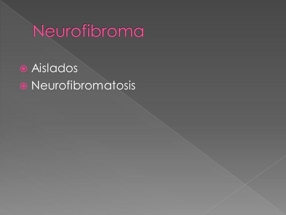 Neurofibroma Aislados Neurofibromatosis