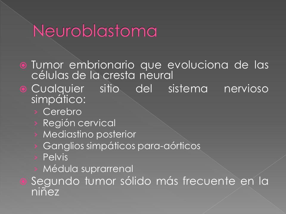 Neuroblastoma Tumor embrionario que evoluciona de las células de la cresta neural. Cualquier sitio del sistema nervioso simpático: