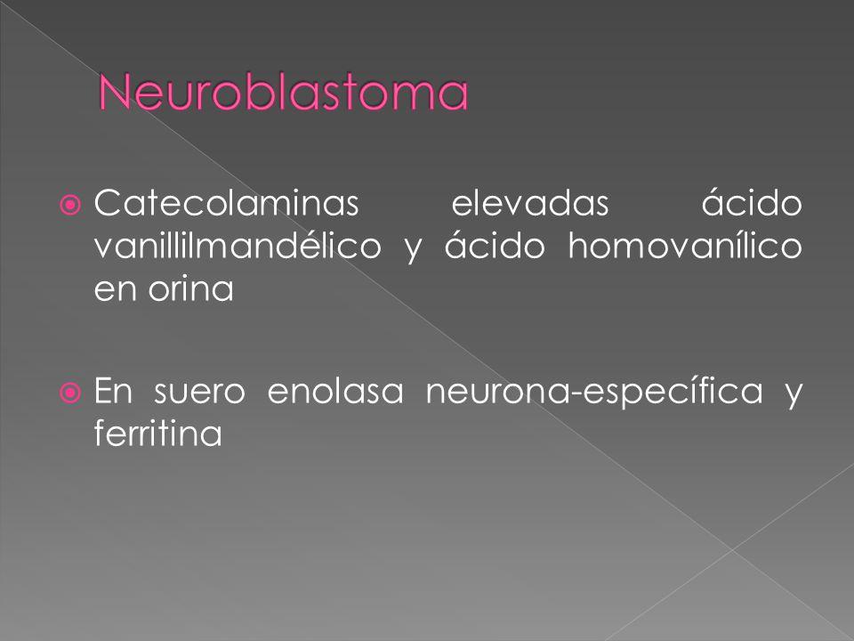Neuroblastoma Catecolaminas elevadas ácido vanillilmandélico y ácido homovanílico en orina.