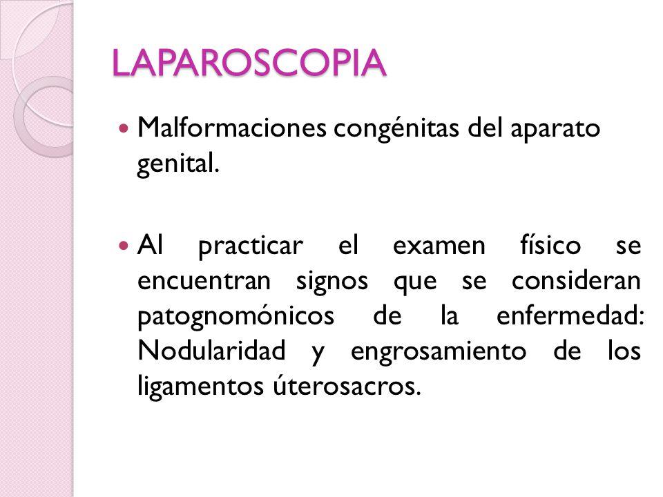 LAPAROSCOPIA Malformaciones congénitas del aparato genital.