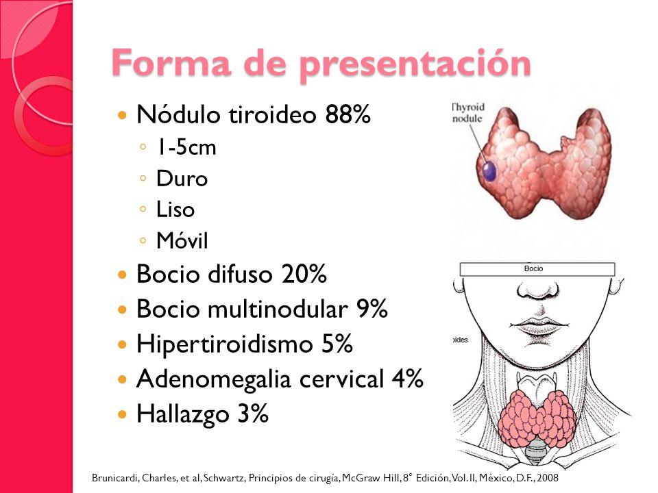 Forma de presentación Nódulo tiroideo 88% Bocio difuso 20%