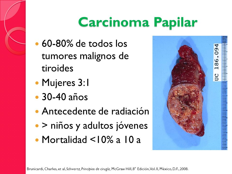Carcinoma Papilar 60-80% de todos los tumores malignos de tiroides