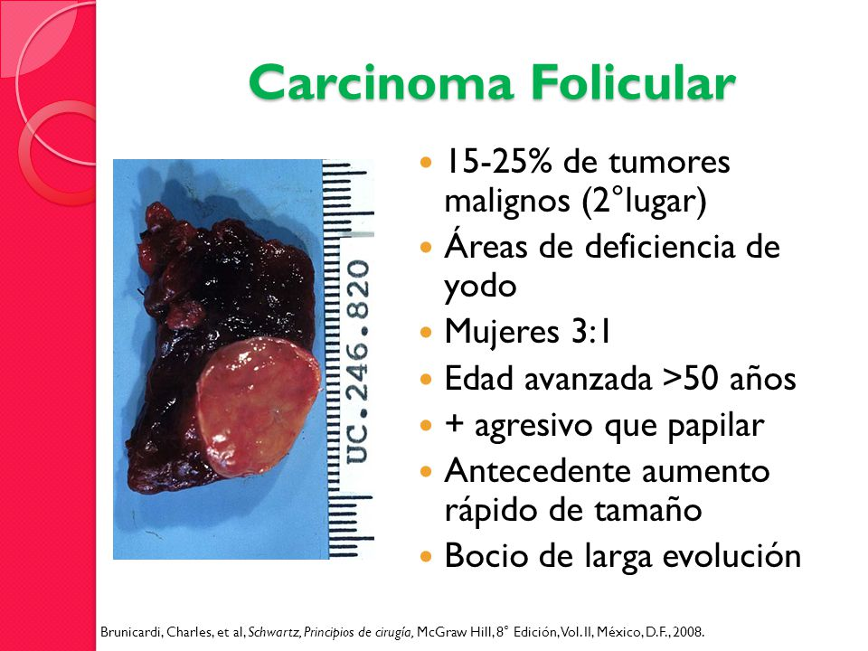 Carcinoma Folicular 15-25% de tumores malignos (2°lugar)