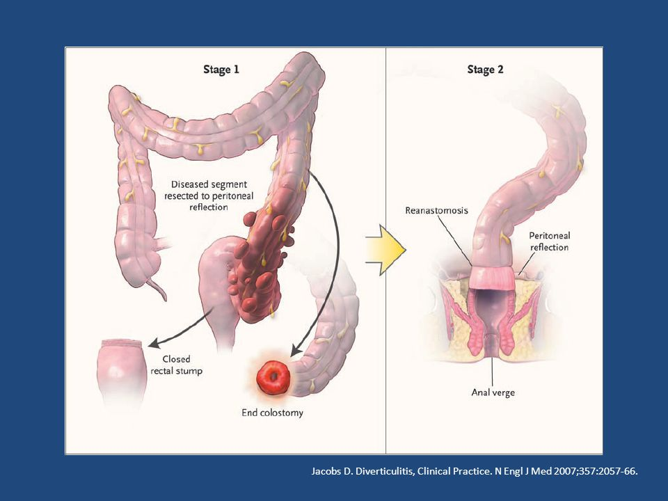 Jacobs D. Diverticulitis, Clinical Practice