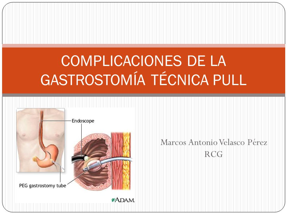 COMPLICACIONES DE LA GASTROSTOMÍA TÉCNICA PULL