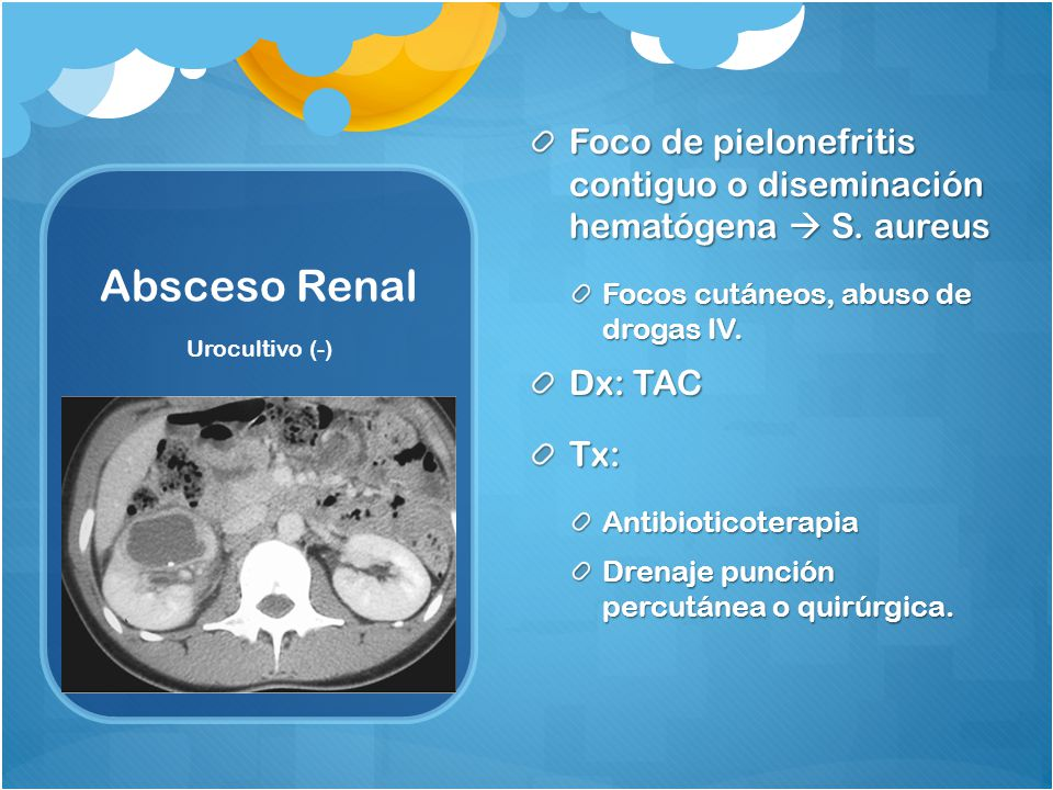 Foco de pielonefritis contiguo o diseminación hematógena  S. aureus