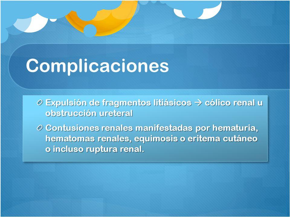 Complicaciones Expulsión de fragmentos litiásicos  cólico renal u obstrucción ureteral.