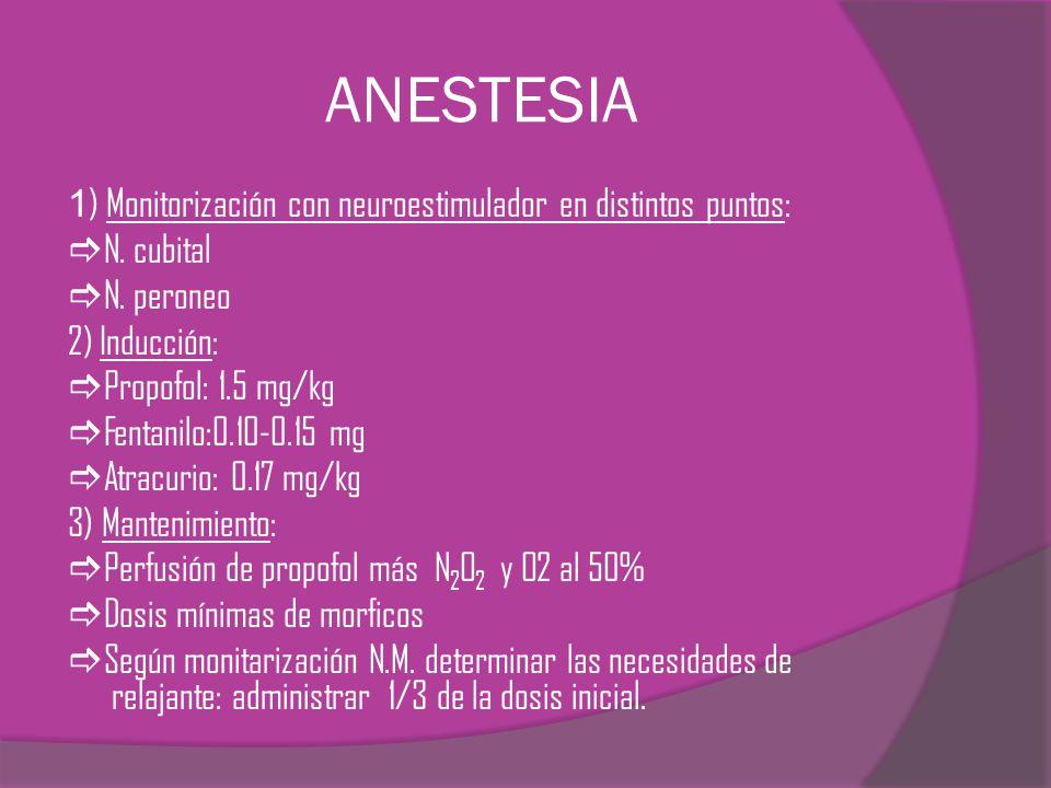 ANESTESIA 1) Monitorización con neuroestimulador en distintos puntos: