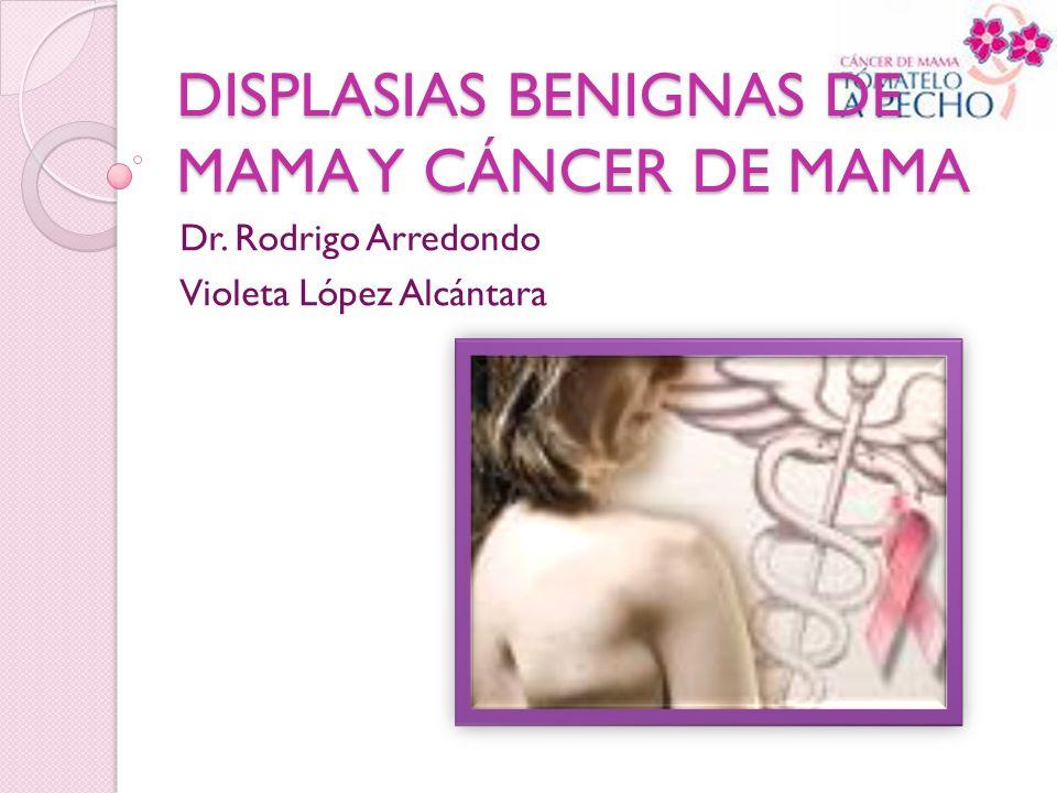 DISPLASIAS BENIGNAS DE MAMA Y CÁNCER DE MAMA