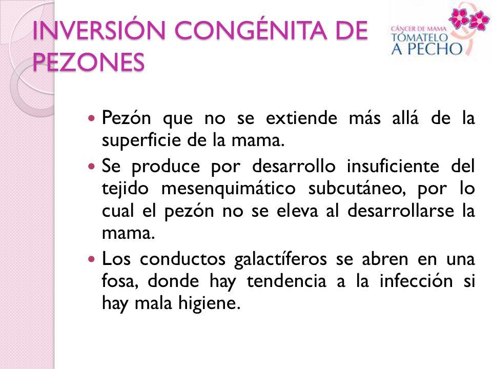 INVERSIÓN CONGÉNITA DE PEZONES