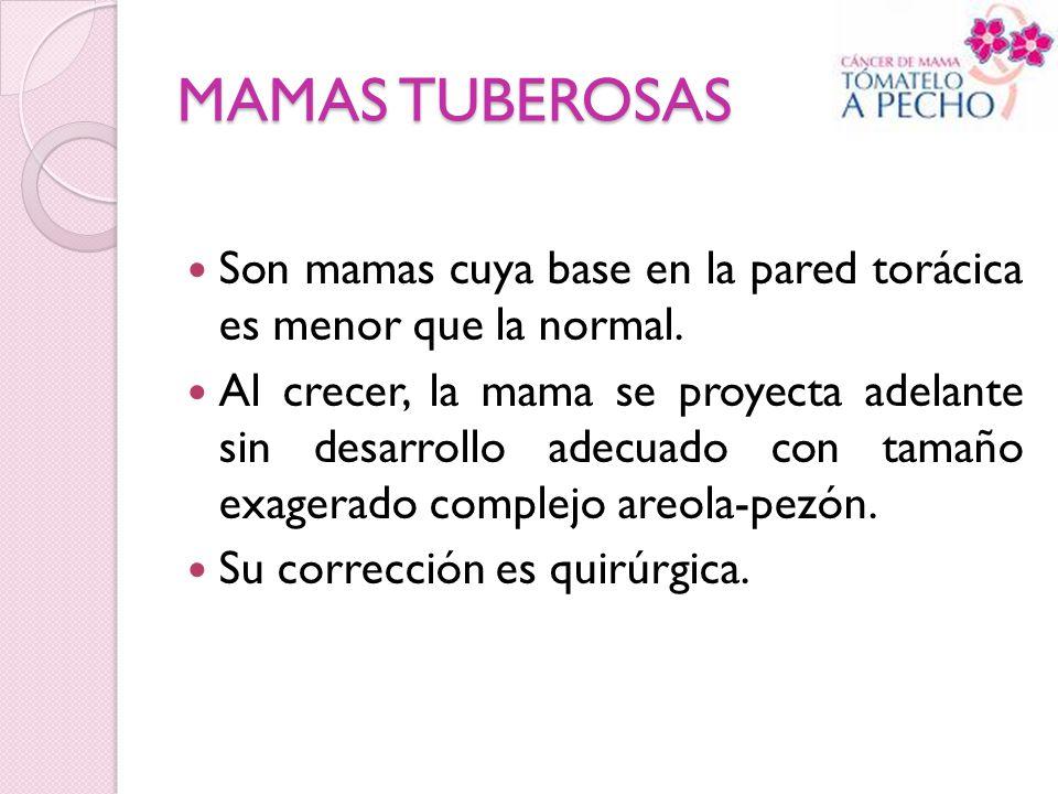 MAMAS TUBEROSAS Son mamas cuya base en la pared torácica es menor que la normal.