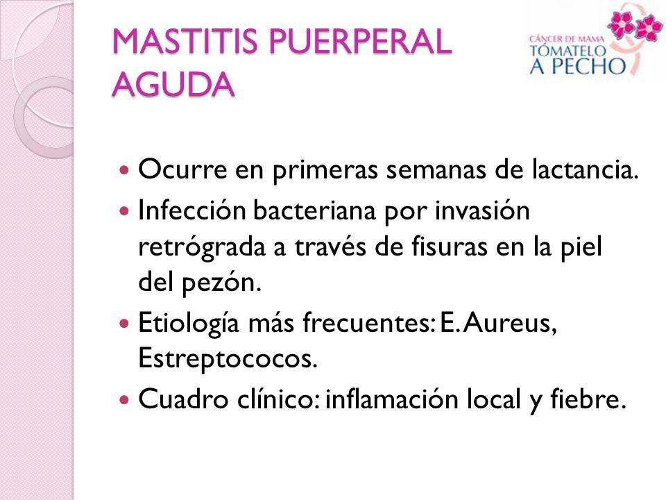 MASTITIS PUERPERAL AGUDA