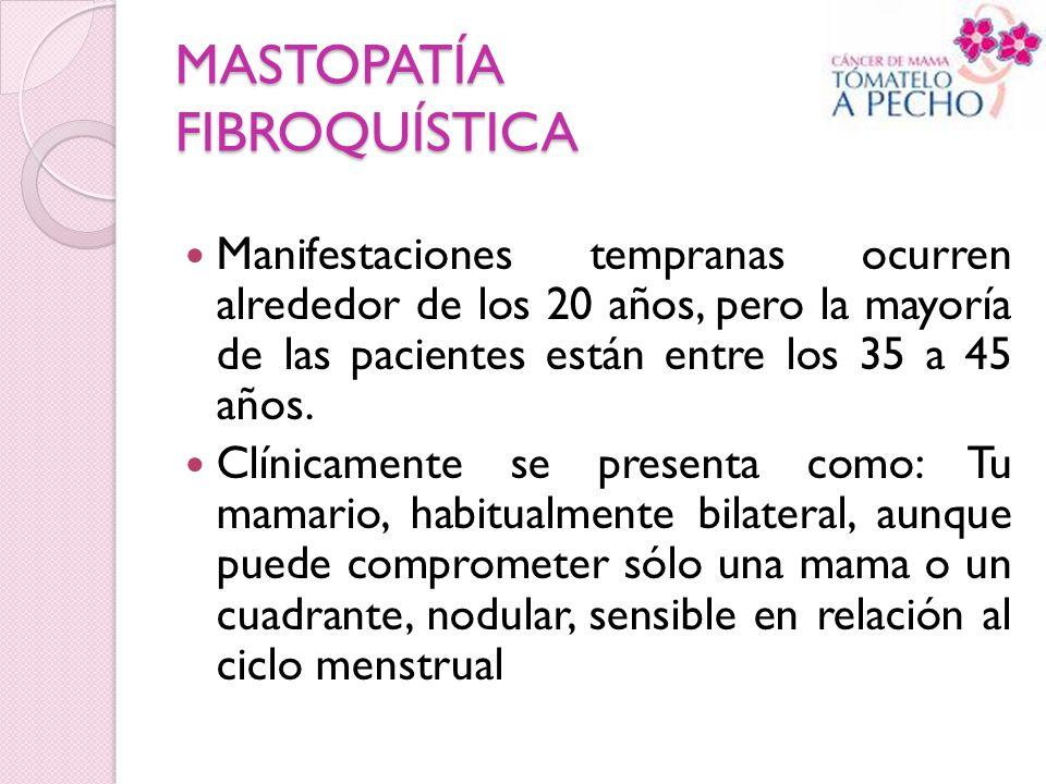 MASTOPATÍA FIBROQUÍSTICA