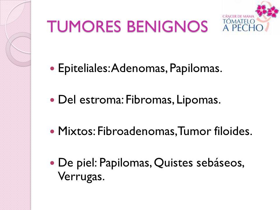 TUMORES BENIGNOS Epiteliales: Adenomas, Papilomas.