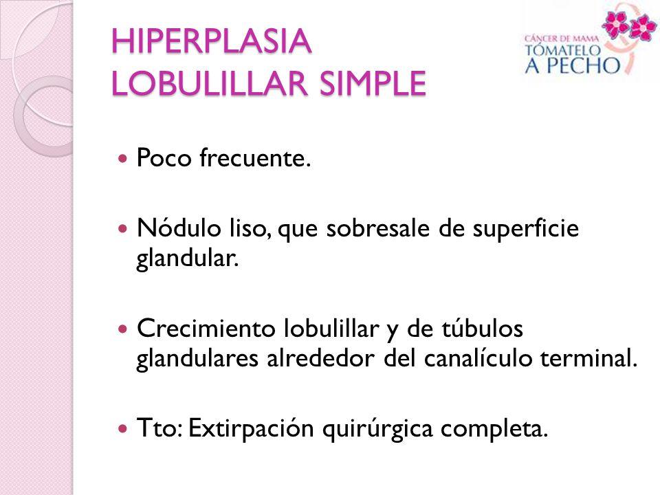 HIPERPLASIA LOBULILLAR SIMPLE
