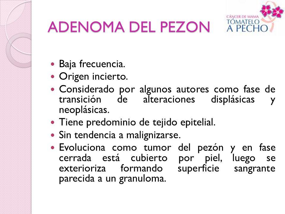 ADENOMA DEL PEZON Baja frecuencia. Origen incierto.