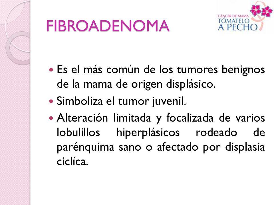 FIBROADENOMA Es el más común de los tumores benignos de la mama de origen displásico. Simboliza el tumor juvenil.