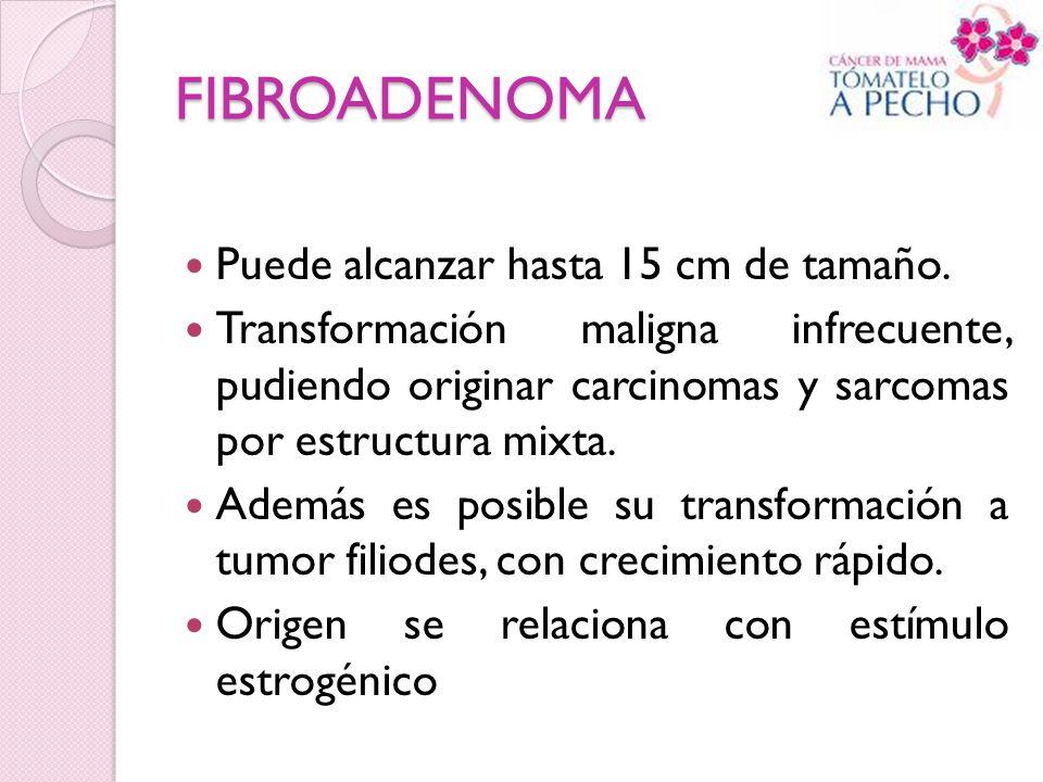 FIBROADENOMA Puede alcanzar hasta 15 cm de tamaño.