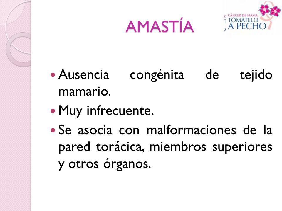 AMASTÍA Ausencia congénita de tejido mamario. Muy infrecuente.