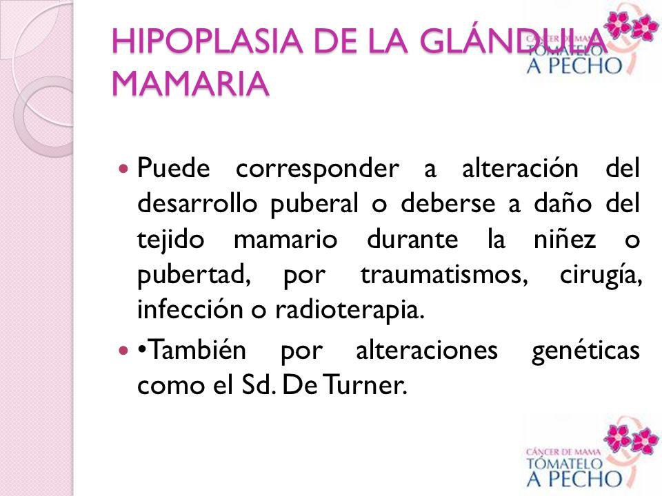 HIPOPLASIA DE LA GLÁNDULA MAMARIA