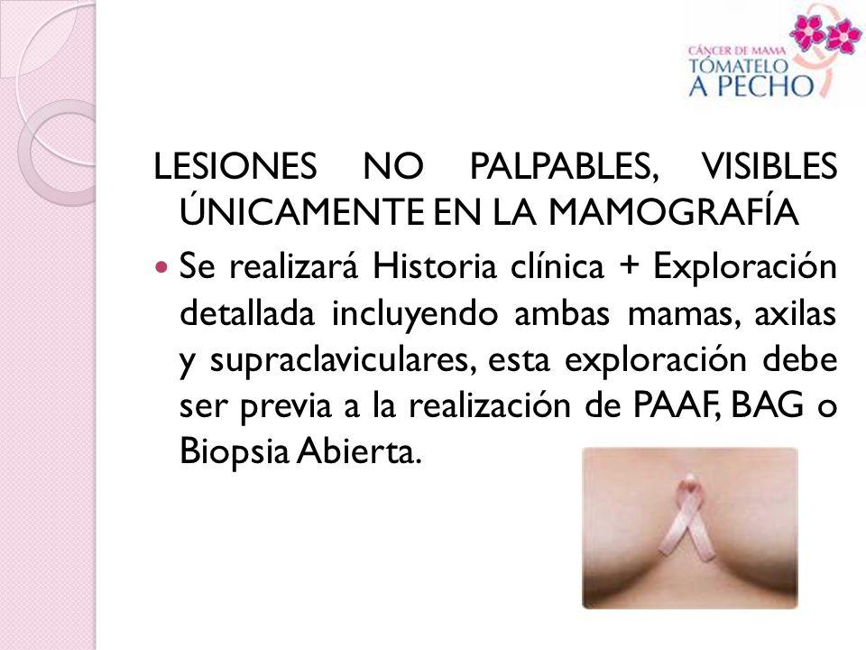 LESIONES NO PALPABLES, VISIBLES ÚNICAMENTE EN LA MAMOGRAFÍA