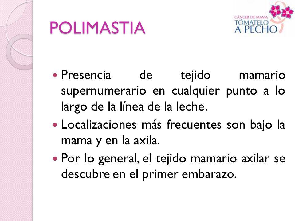 POLIMASTIA Presencia de tejido mamario supernumerario en cualquier punto a lo largo de la línea de la leche.