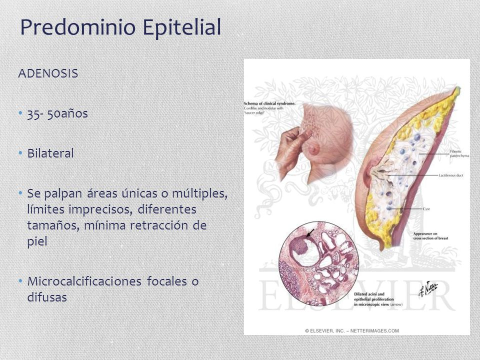 Predominio Epitelial ADENOSIS 35- 50años Bilateral