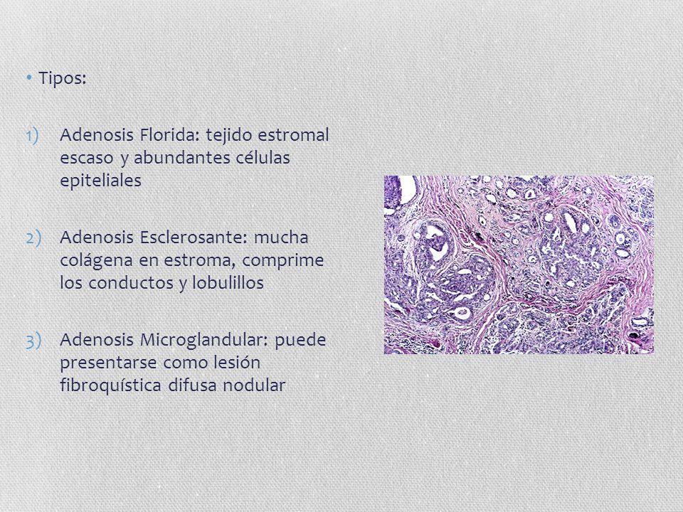 Tipos: Adenosis Florida: tejido estromal escaso y abundantes células epiteliales.