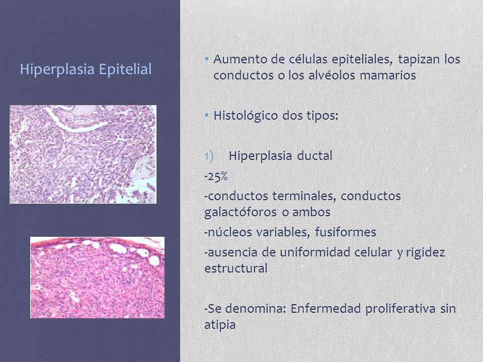 Hiperplasia Epitelial