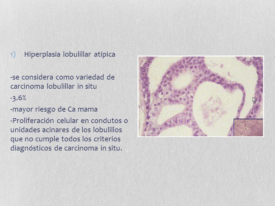 Hiperplasia lobulillar atípica