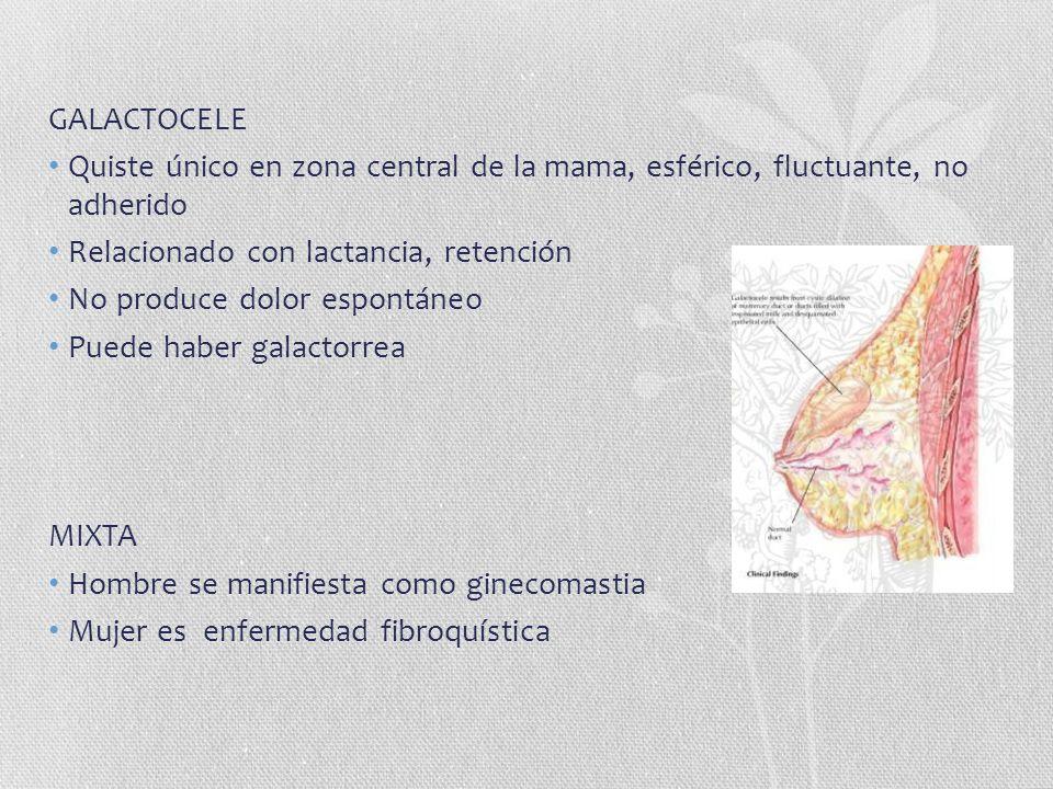 GALACTOCELE Quiste único en zona central de la mama, esférico, fluctuante, no adherido. Relacionado con lactancia, retención.