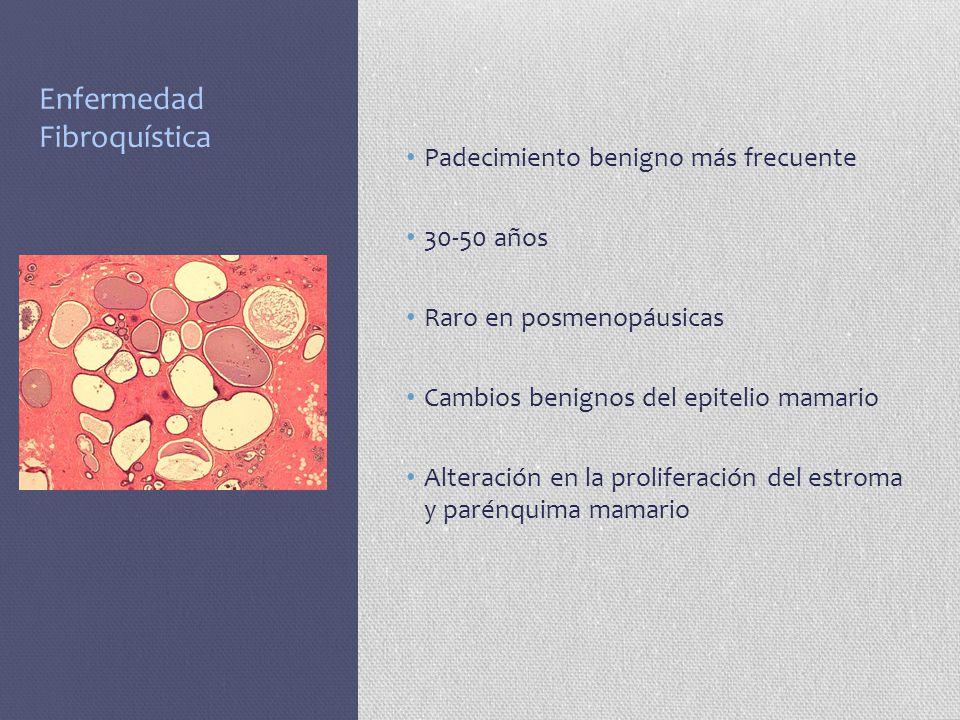 Enfermedad Fibroquística