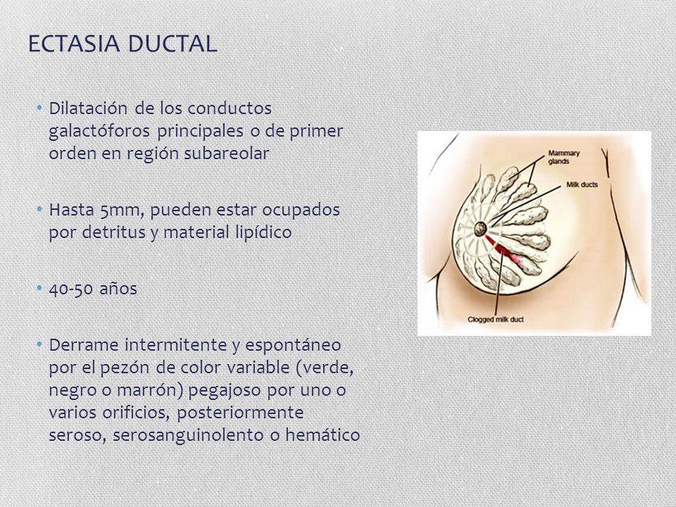 ECTASIA DUCTAL Dilatación de los conductos galactóforos principales o de primer orden en región subareolar.