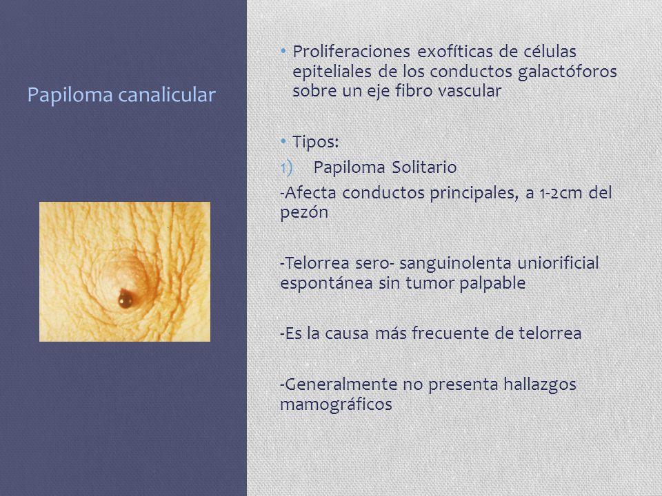 Papiloma canalicular Proliferaciones exofíticas de células epiteliales de los conductos galactóforos sobre un eje fibro vascular.