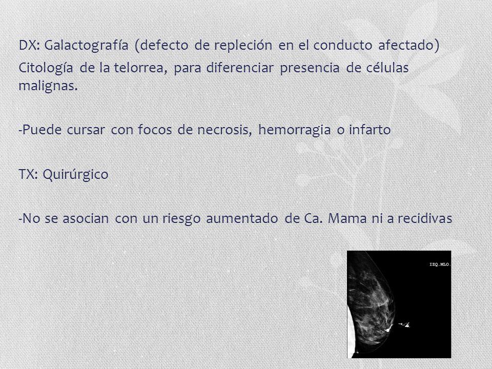 DX: Galactografía (defecto de repleción en el conducto afectado)