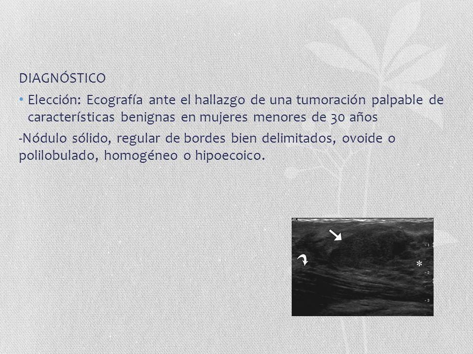 DIAGNÓSTICO Elección: Ecografía ante el hallazgo de una tumoración palpable de características benignas en mujeres menores de 30 años.