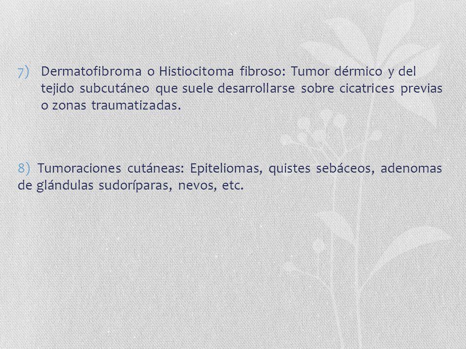 Dermatofibroma o Histiocitoma fibroso: Tumor dérmico y del tejido subcutáneo que suele desarrollarse sobre cicatrices previas o zonas traumatizadas.
