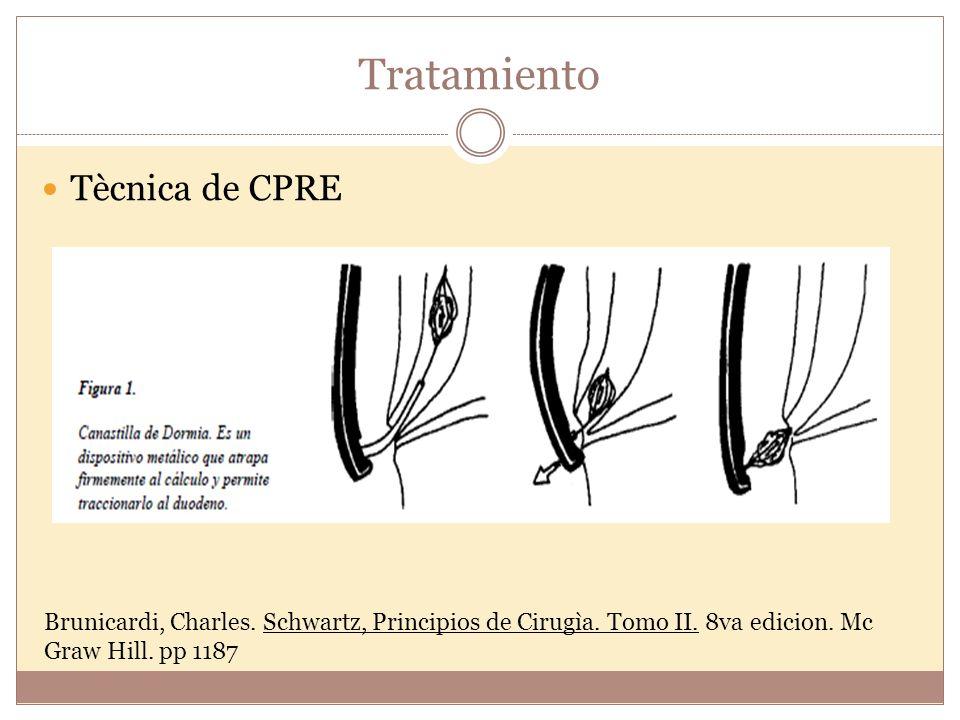 Tratamiento Tècnica de CPRE