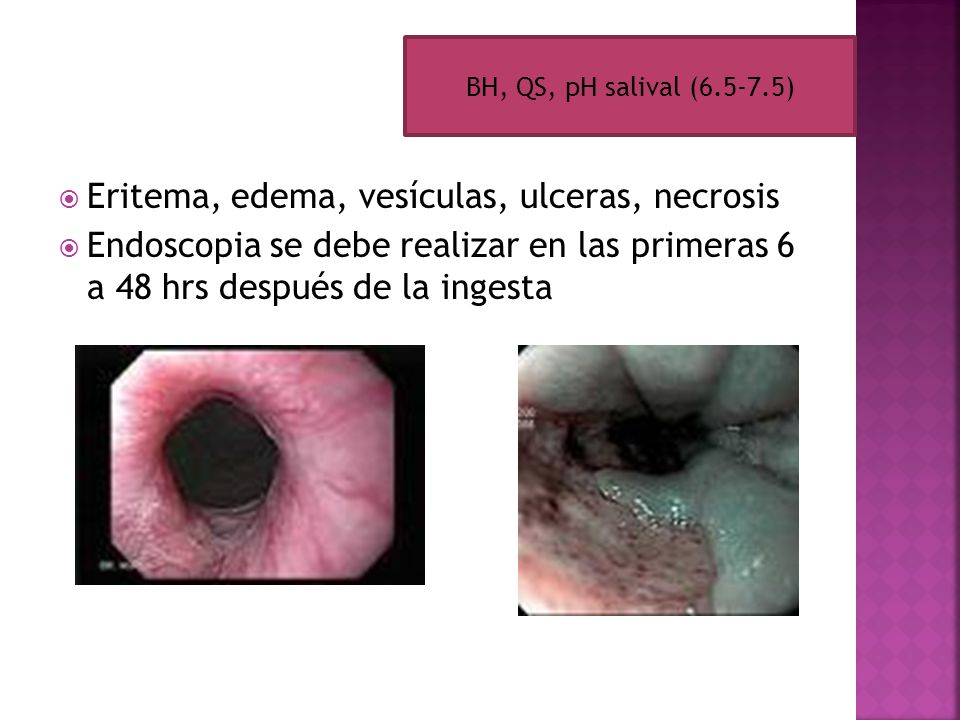 Eritema, edema, vesículas, ulceras, necrosis