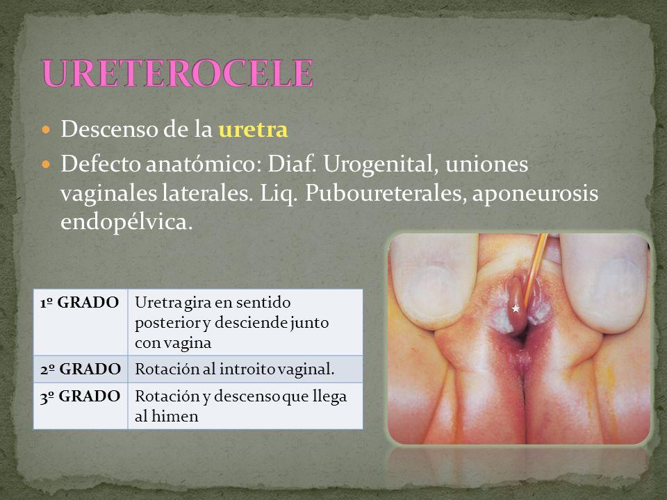 URETEROCELE Descenso de la uretra