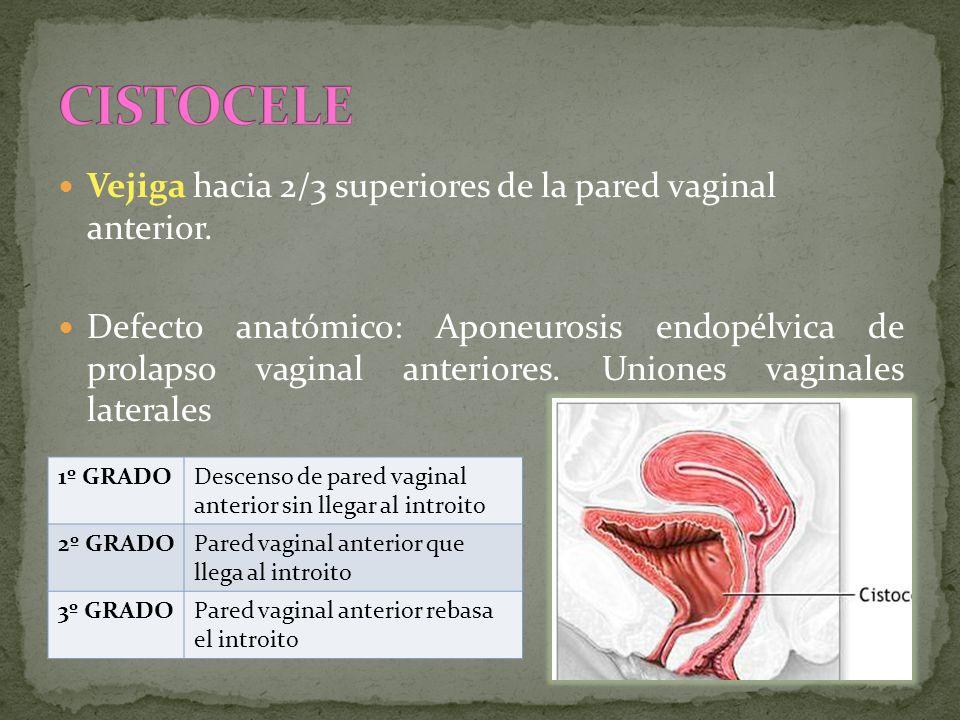 CISTOCELE Vejiga hacia 2/3 superiores de la pared vaginal anterior.