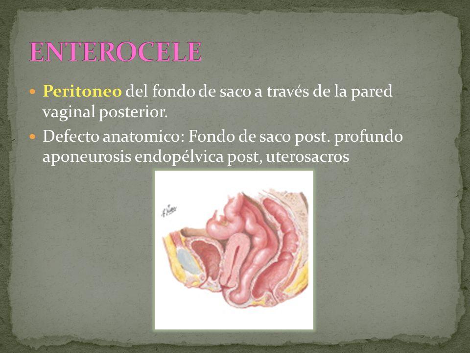 ENTEROCELE Peritoneo del fondo de saco a través de la pared vaginal posterior.