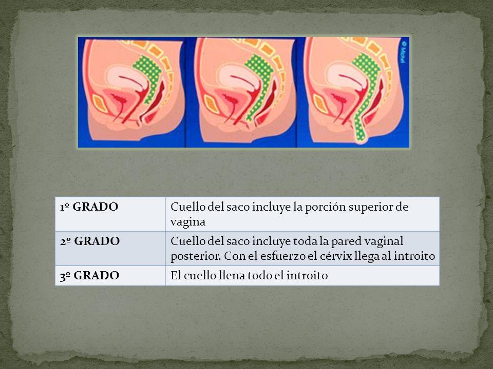 1º GRADO Cuello del saco incluye la porción superior de vagina. 2º GRADO.
