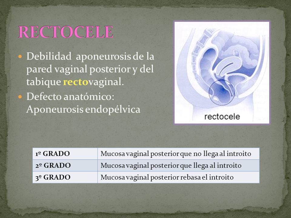 RECTOCELE Debilidad aponeurosis de la pared vaginal posterior y del tabique rectovaginal. Defecto anatómico: Aponeurosis endopélvica.